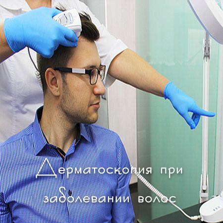 Дерматоскопия при заболевании волос (2017) WEB-DLRip 720р